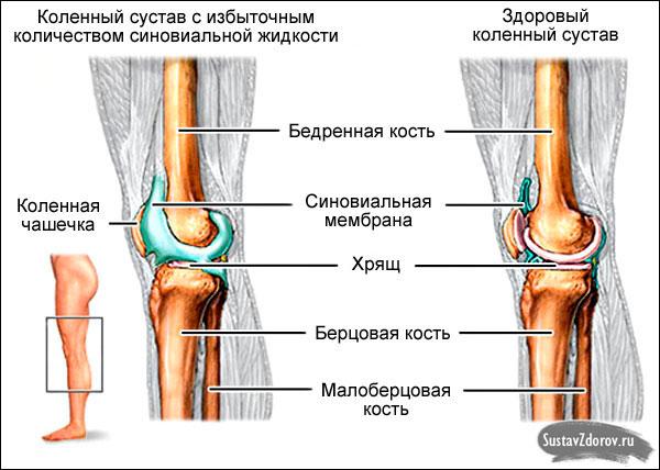 Вами согласен. симптомы боли в коленном суставе случайно