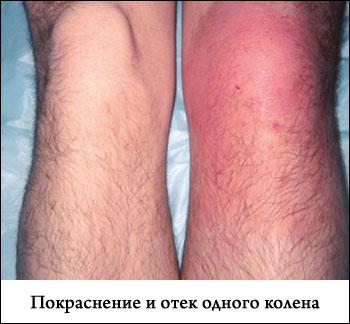 отек коленного сустава без боли объяснение