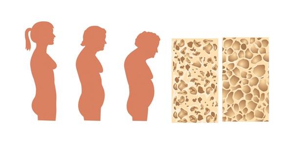 нарушение осанки и костей при остеопорозе