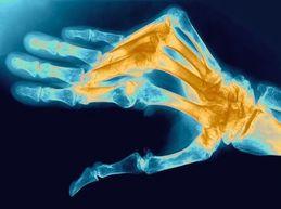 Причины, симптомы и лечение ревматоидного полиартрита