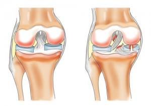 От чего болят тазобедренные суставы при беременности