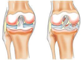 Мениск колена: причины, симптомы повреждения и лечение