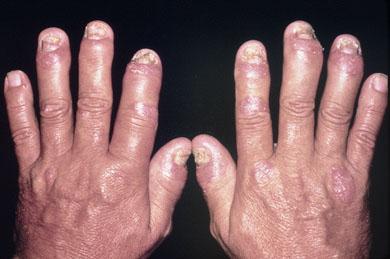 поражение рук псориатическим артритом