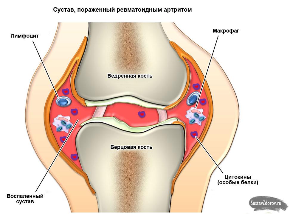 Ревматоидный полиартрит: причины, симптомы, лечение, диагностика