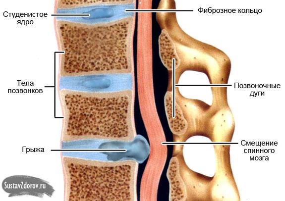 Лечение остеохондроза шейного отдела краснодар