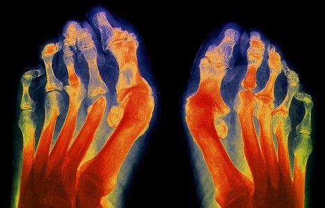 ревматоидный артрит пальцев ног