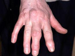 псориатический артрит руки