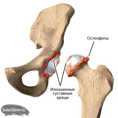 тазобедренный сустав остеофиты
