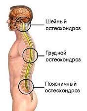 остеохондроз отделы позвоночника