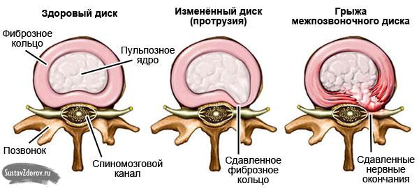 этапы поражения межпозвоночного диска