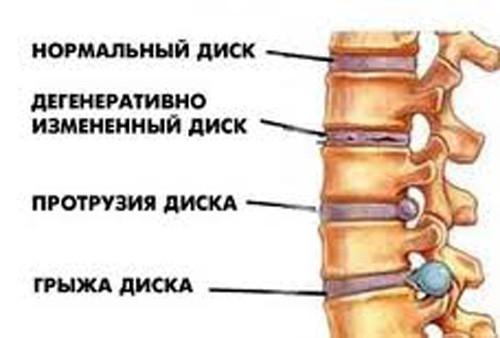 разрушение межпозвоночных дисков при остеохондрозе