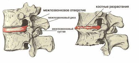 костные разрастания при остеохондрозе