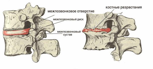 Дипроспан уколы отзывы при остеохондрозе