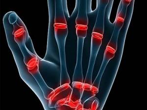Начали хрустеть все суставы ширина рентгеновской щели голеностопного сустава