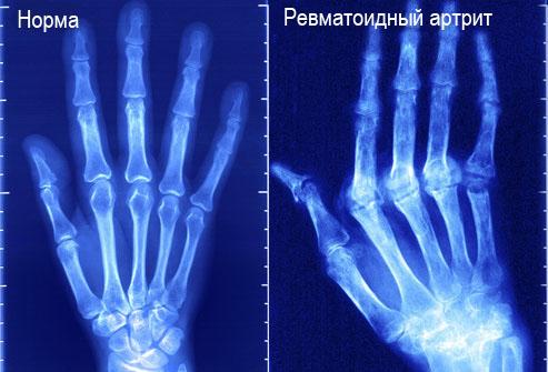 ревматоидный артрит рентген кисти