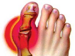 артроз большого пальца стопы