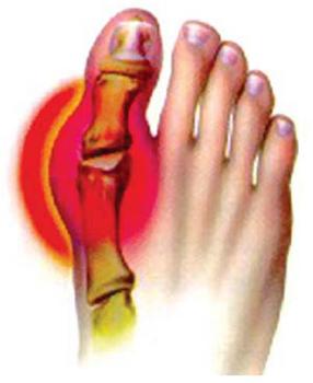 Артроз стопы: симптомы и лечение, что это такое