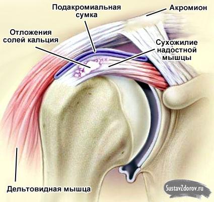 схема плечевого сустава отложение солей