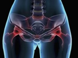 артрит тазобедренных суставов