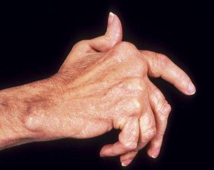 Заболевание сустава мизинца