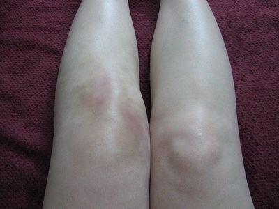 опухшие колени при артрите