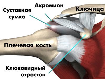 Спорт и артроз плечевого сустава спайки плечевого сустав
