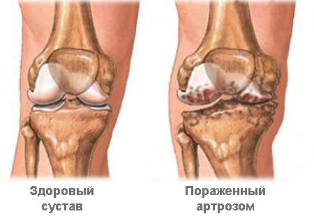 Изображение - Как лечится артроз суставов artaoz-sys