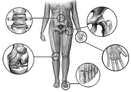 Все симптомы и признаки артрита суставов