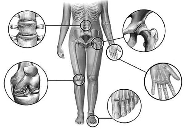 Ревматоидный артрит хрустят суставы бандаж плечевого сустава для спорта