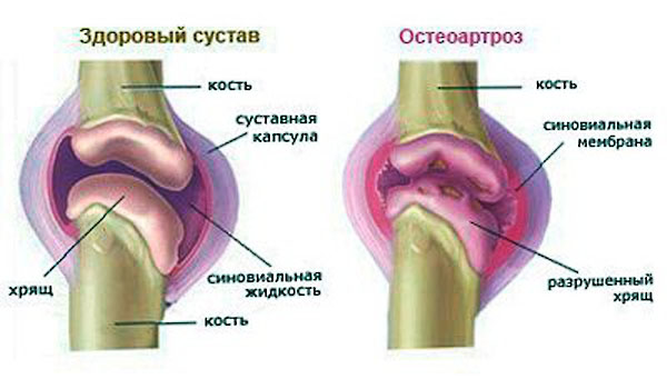 остеолиз голеностопного сустава