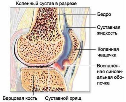 коленный сустав в разрезе