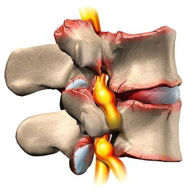 сдавливание межпозвоночных дисков при остеохондрозе