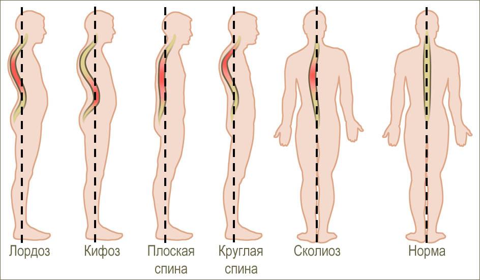 Остеохондроз симптомы и причины