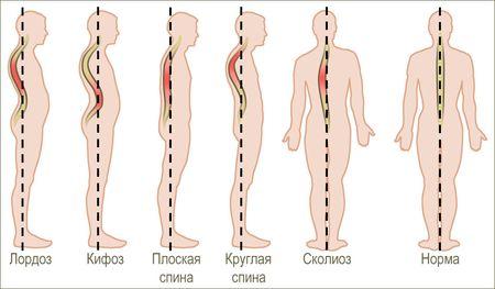 Остеохондроз спины как лечить симптомы полное описание заболевания