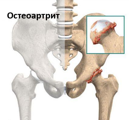 коксартроз тазобедренного сустава