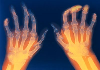 артрит суставов рук