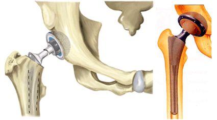 Изображение - Лечится артрит суставов ehndoprotezirovanie-tazobedrennogo-sustava
