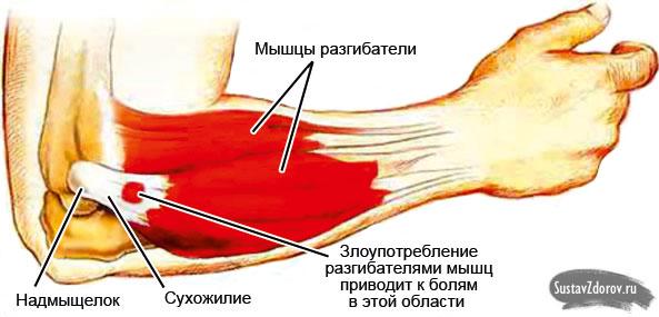 Ноющая боль в локтевом суставе после тренировки деформирующий гоноартроз коленного сустава лечение