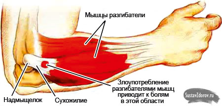 Изображение - Начали болеть локтевые суставы forearm-extensor-muscles2