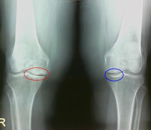 сужение суставной щели колена