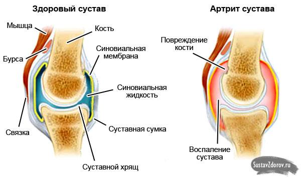 Артрит коленного сустава: симптомы и лечение, причины болезни