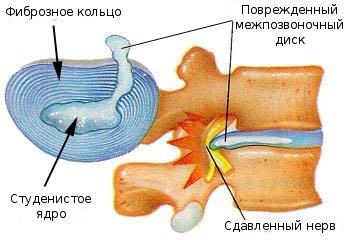 остеохондроз разрушение фиброзного кольца