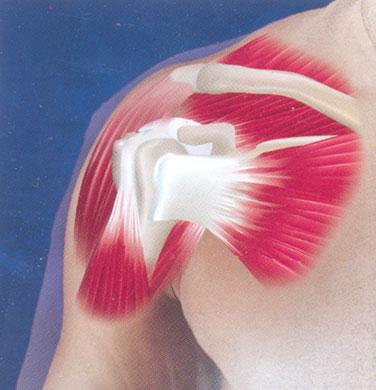 Изображение - Ноет плечевой сустав periartrit