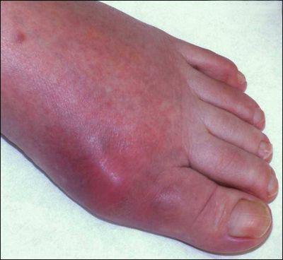 Изображение - Как проявляется воспаление суставов podagra_prot