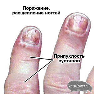 Изображение - Как проявляется артрит суставов psoriatic_nails_dyn