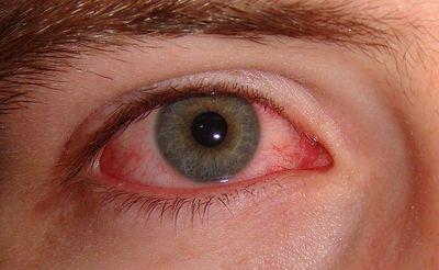 Заболевания глаз и суставов самые лучшие имплантанты тазобедренного сустава