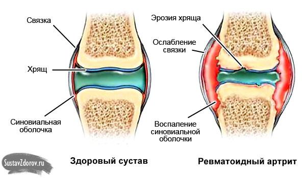 Суставы щёлкают поспе стрептококовой инфекции почему болит кистевой сустав
