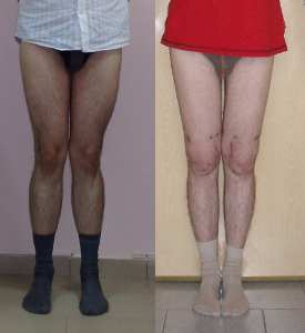 искривление ног: o x образная формы