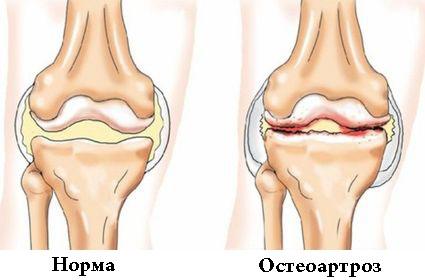 Лечение доа коленного сустава 2 степени