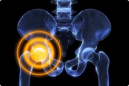 Что делать, если болят тазобедренные суставы: причины, последствия и лечение